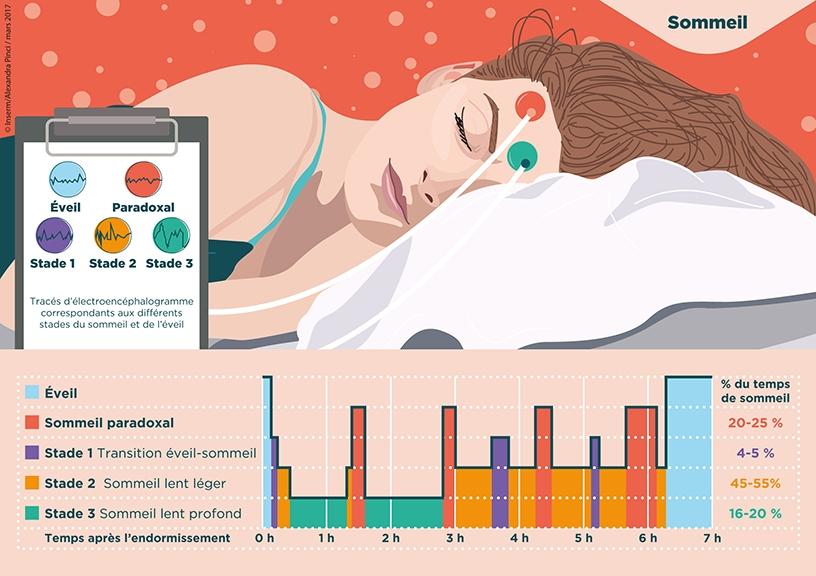 hypnogramme les stades du sommeil